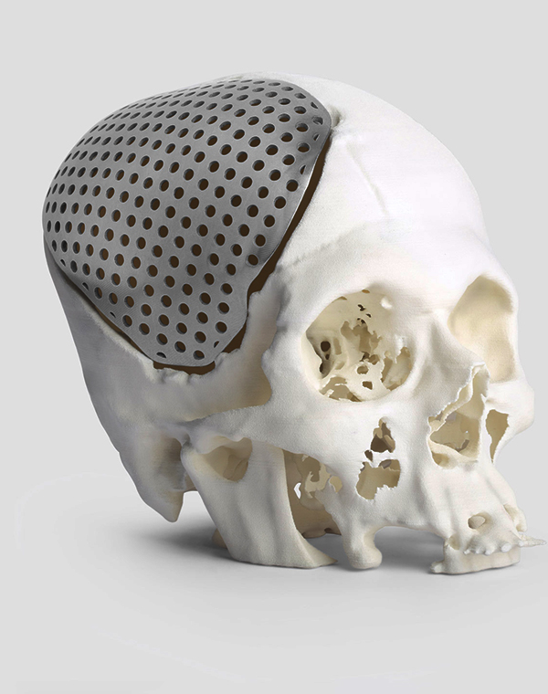 3D Printing for Patient Specific Implants
